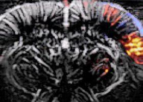 fUS-epilepsy