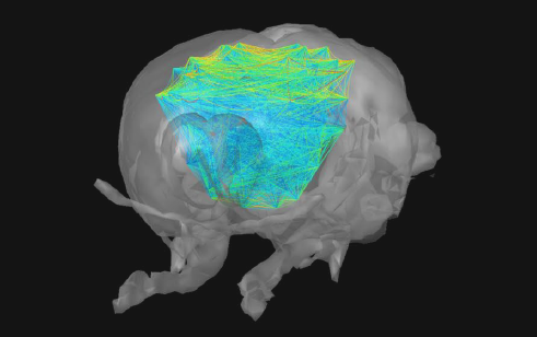 New publication in Nature Methods on 4D functional ultrasound imaging