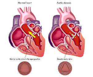 Non-invasive therapy of aortic stenosis: a successful first clinical trial
