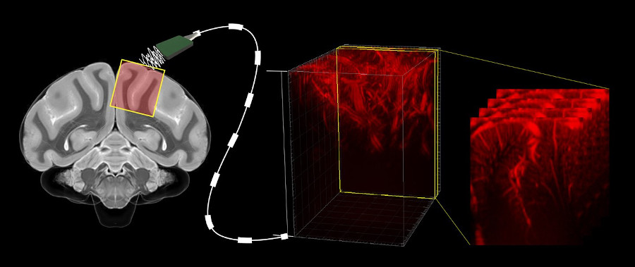 Functional ultrasound as a read-out for brain-machine interfaces